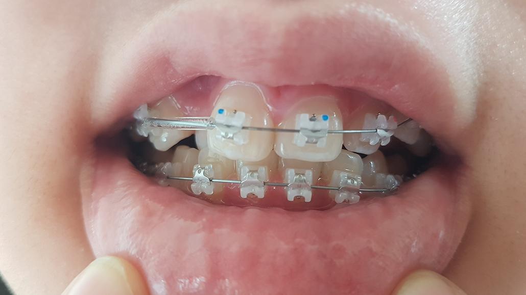 치아교정_윗니 클리피씨 1.jpg