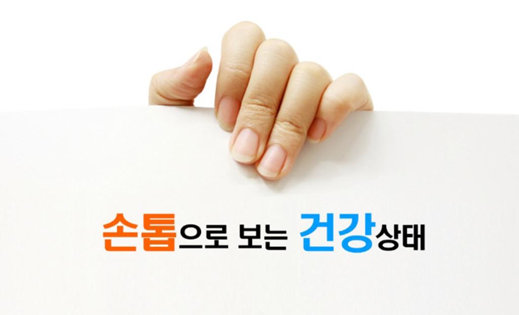 손톱으로 보는 건강.jpg