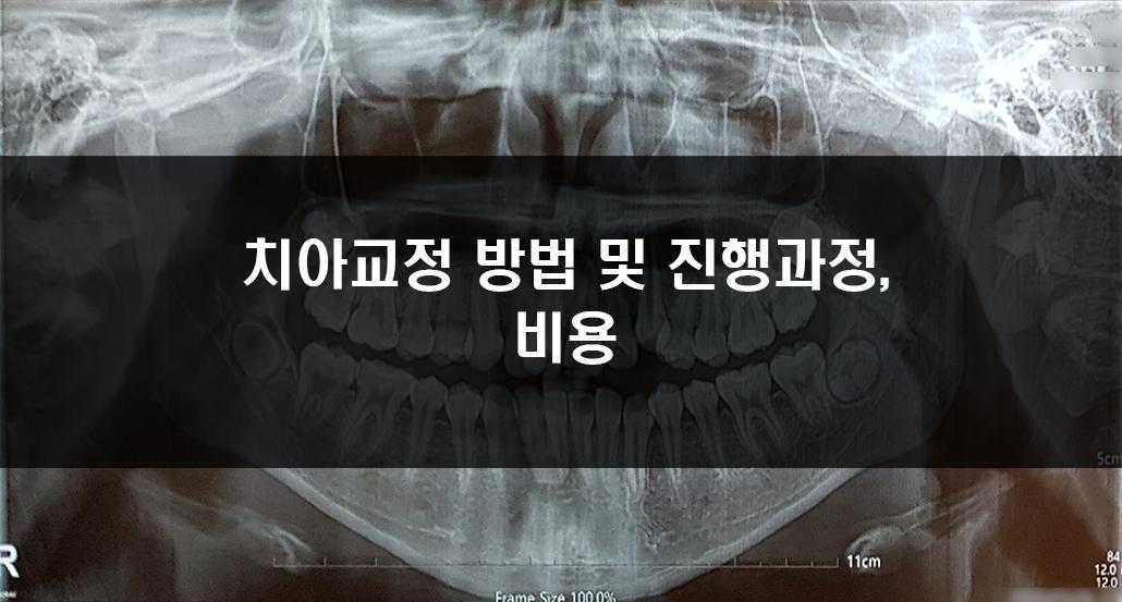 치아교정 진행과정.jpg