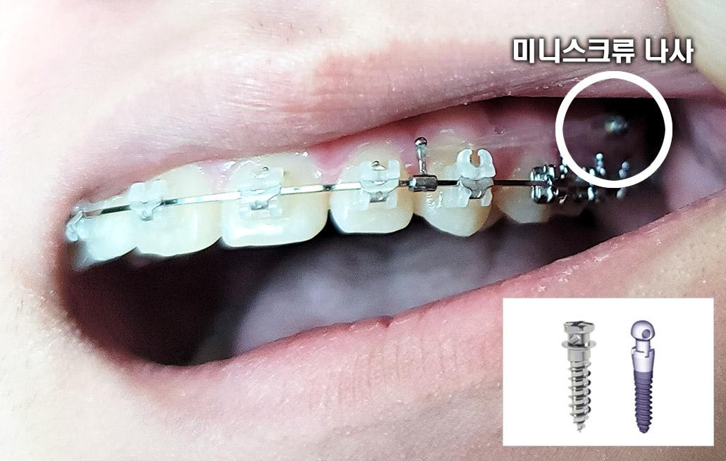 치아교정 미니스크류2.jpg