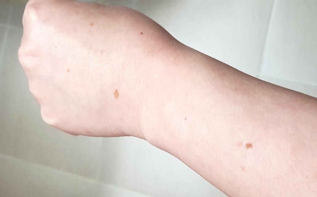 팔 검버섯.jpg