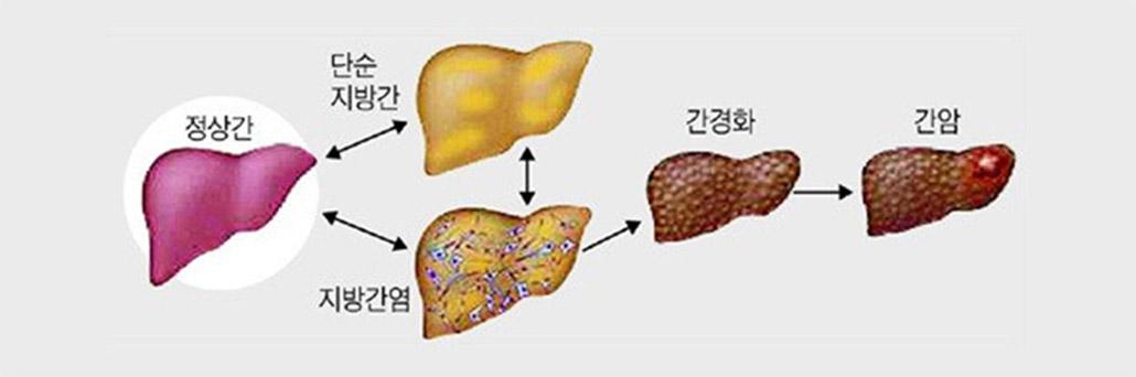 지방간 합병증.jpg